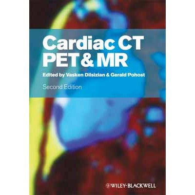 Cardiac CT, PET & MR, 2nd Ed.