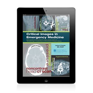 Critical Images in Emergency Medicine for iPad (APP Store)