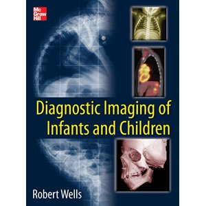 Diagnostic Imaging of Infants and Children (2 volume set)