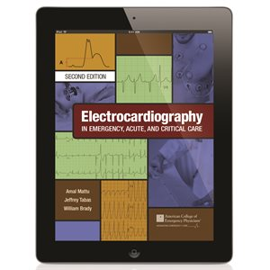 Electrocardiography in Emergency, Acute and Critical Care, 2nd Ed DIGITAL