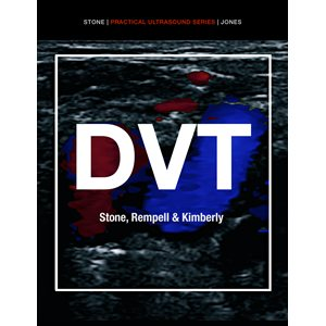 Practical Ultrasound Series: Deep Venous Thrombosis ACEP iBook